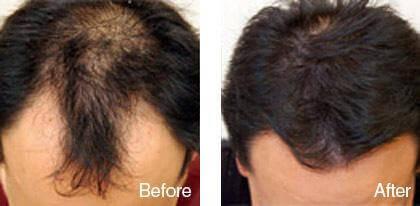 ハゲ-薄毛のダーマローラー使用前後