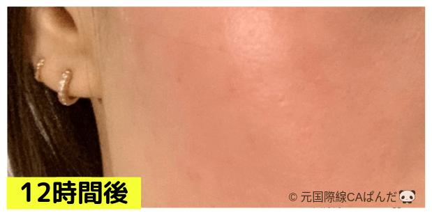 ダーマローラ治療の肌の経過写真