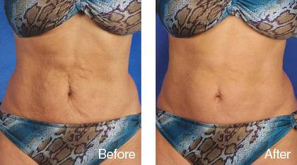 dermaroller-before-and-after-stretch-marks